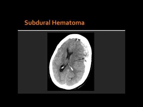 Intracranial Hemorrhage - Subdural Hematoma