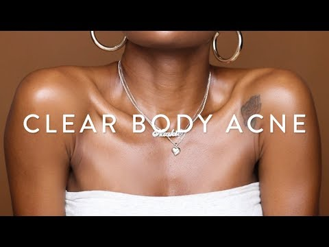 How To Get Rid Of BODY ACNE Fast! | ✨Glowy Skincare Routine For Chest & Back✨