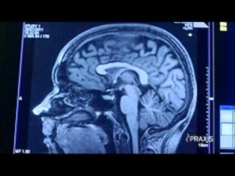 """rbb Praxis inforadio 21. Mai 2012 """"Volkslieder als Therapie bei Alzheimer"""" (Wiebke Hoogklimmer)"""