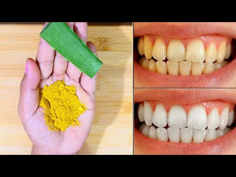 magical-removable-yellow-teeth-to-white-teeth-in-3-minutes-|-making-strong-teeth