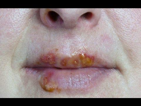 Простуда на губах - эффективное лечение или как быстро