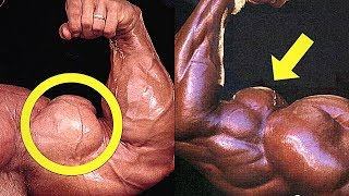 Top 10 Biceps in Bodybuilding History!