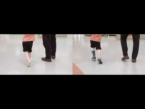 Before & After: Excess Plantarflexion | Toe Walking | DAFO 2