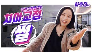 중매쟁이 아만다 '하효정'님의 치아교정 1년2개월차 썰…
