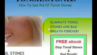 Tonsil Stones Cure - Tonsilloliths