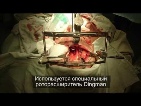 НОВОЕ В ОНКОЛОГИИ. Роботическая онкохирургия. Рак полости рта. Рак молочной железы.