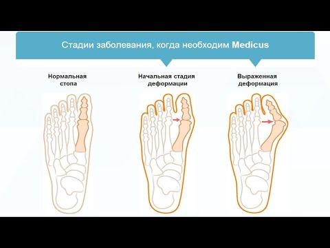 Ревматизм ног – симптомы, признаки и лечение в домашних