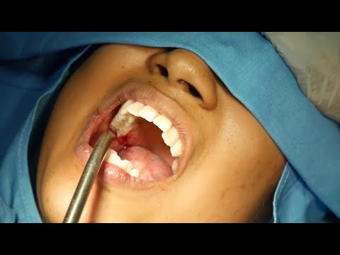 All The Three Wisdom Teeth Removal - Oral Surgery By Dr. Sunil Richardson