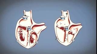 Video Come funziona il cuore? download MP3, 3GP, MP4, WEBM, AVI, FLV November 2017