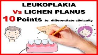 leukoplakia vs lichen planus : 10 points to differentiate clinically