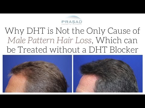 Hair Loss Treatment: PRP is Not a DHT Blocker, but DHT is Not the Only Cause of Pattern Hair Loss