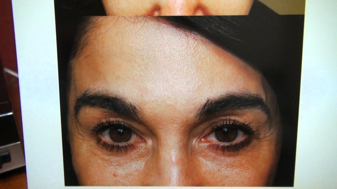 Eyebrows Hair Transplant Surgery Result 12 Month Follow Up Dr Diep