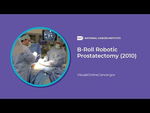 B Roll Robotic Prostatectomy 2010 Youtube