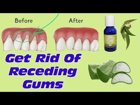 How To Grow Back Your Receding Gums With These Natural Remedies- Best Treatment For Gum Diseases
