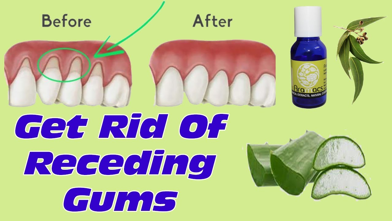 how to grow back your receding gums with these natural remedieshow to grow back your receding gums with these natural remedies best treatment for gum diseases