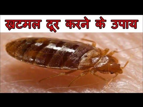ख़टमल से छुटकारा पाने के घरेलू उपाय | How To Get Rid Of Bed Bugs