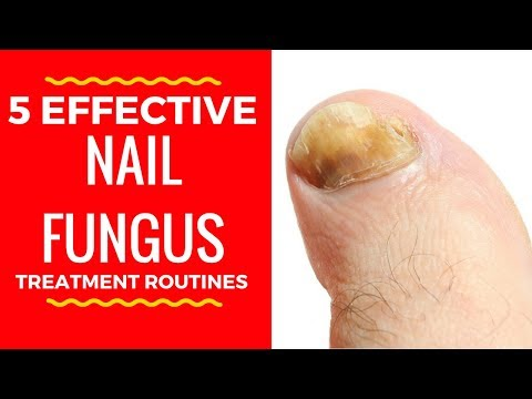 5 Effective Nail Fungus Treatment Routines – Home Remedies for Toenail Fungus