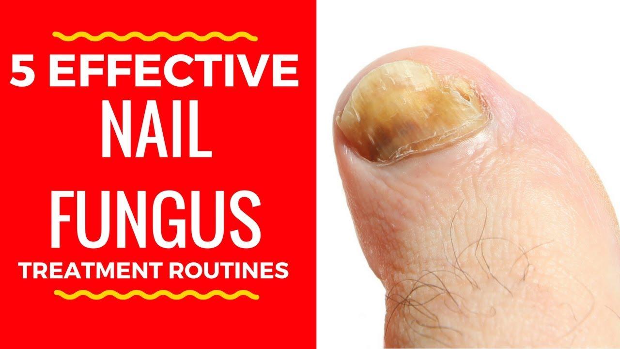 5 Effective Nail Fungus Treatment Routines Home Remedies For Toenail Fungus