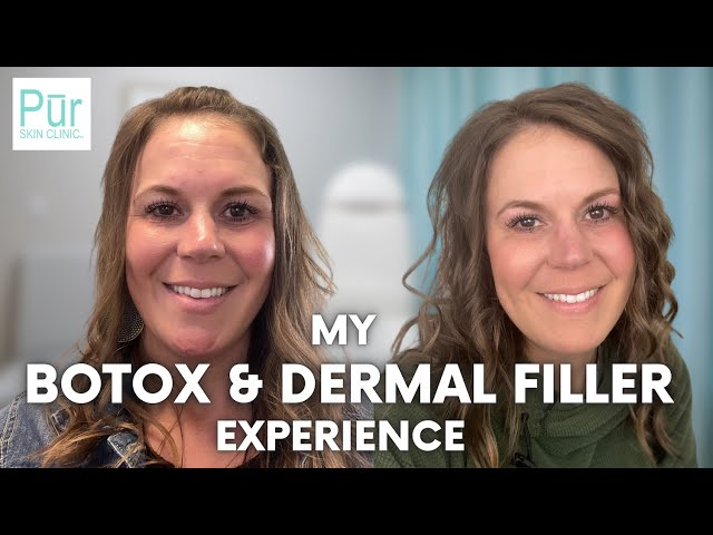 MY BOTOX & DERMAL FILLER EXPERIENCE | Dermal Fillers + Botox Before and After | PUR Skin Clinic
