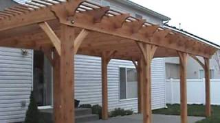 Ready Made Pergola Kits: Get Affordable Custom Pergola Kits