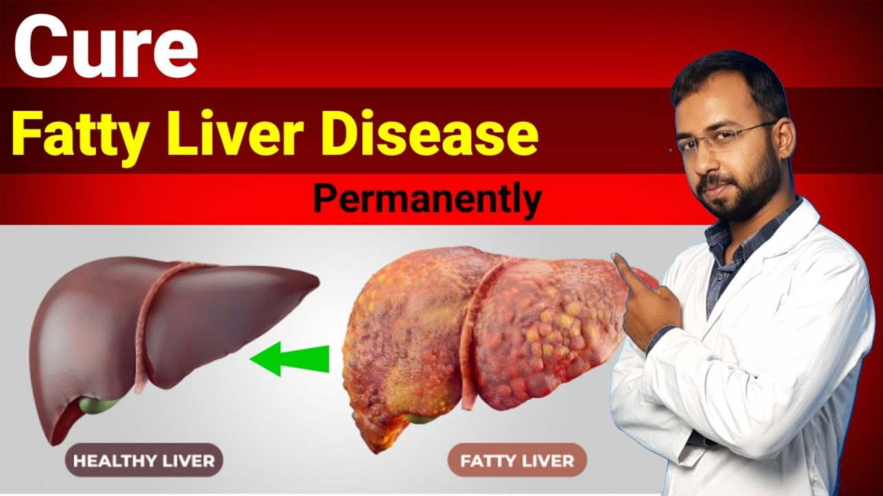 Cure fatty liver disease Permanently upto grade 3   fatty liver treatment symptoms diet exercise