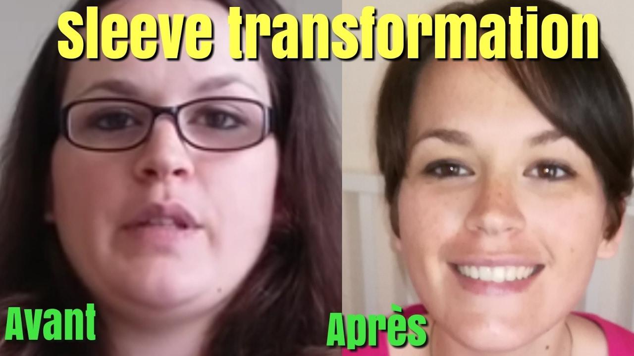 Sleeve perte de poids -37 kilos la transformation Sleeve