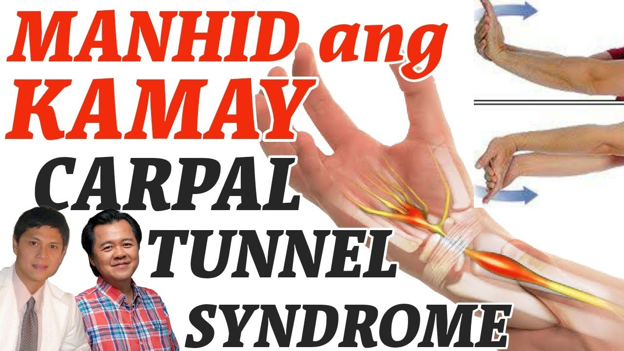Manhid ang Kamay: Carpal Tunnel Syndrome - by Doc Willie Ong