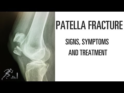 Patella fracture: Mechanism of injury, signs and symptoms and treatment