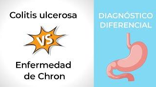 Colitis ulcerosa belféreg, Colitis ulcerosa belfereg - dentiimplantclinic.hu