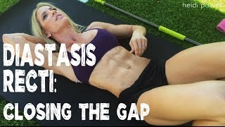 Diastasis Recti: 5 Exercises To Close the Gap for Postpartum Moms