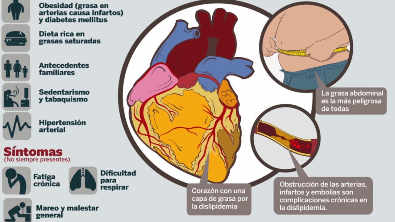 Factor de riesgo de hipertensión para enfermedades del corazón