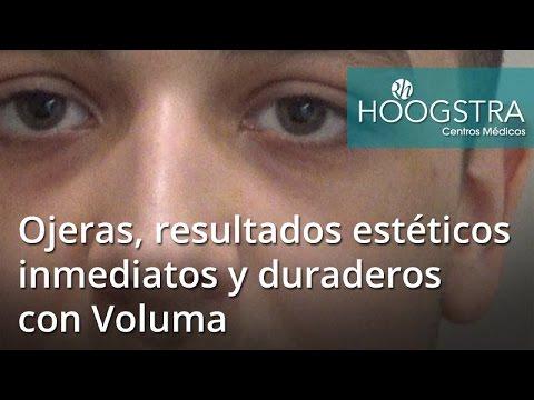Ojeras, resultados estéticos inmediatos y duraderos con Voluma (17022)
