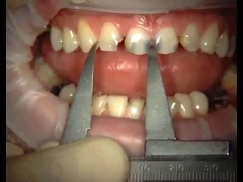 Реставрация передних зубов часть 1