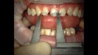 Реставрация передних зубов часть 1(Реставрация передних верхних зубов с помощью композитного материала Capo. Часть 1., 2015-11-14T06:27:20.000Z)