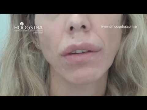 Labios y rellenos: Los efectos INDESEADOS de la silicona (14042)