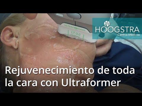 Rejuvenecimiento de toda la cara con Ultraformer (17101)