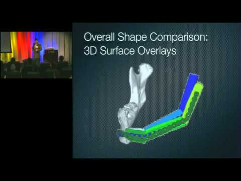 2011 Frontiers of Engineering: Additive Manufacturing is Changing Surgery