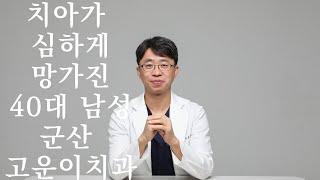 40대남성 치과치료 임…