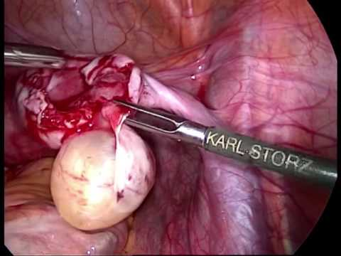 small ovarian cyst treatment