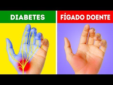 2 diabetes dormentes tipo mãos