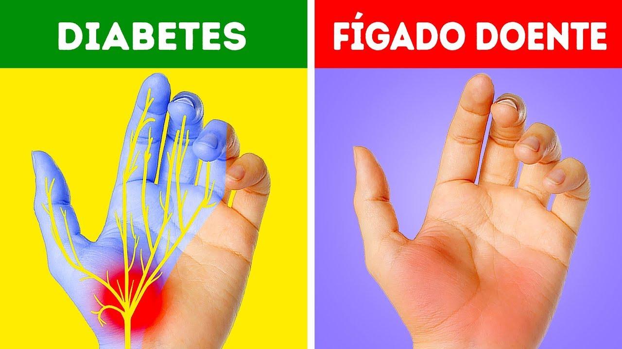 rigidez en los dedos síntomas de diabetes