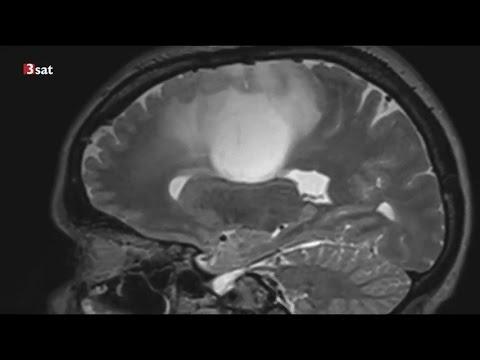 Methadon soll gegen Krebs helfen - weitere Forschung wird aber nicht finanziert (Nano 02.05.2017)