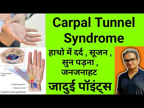acupressure points for carpal tunnel syndrome - hand pain ...