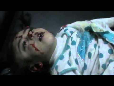 شام حمص الرستن 21 3 2012 الشهيدة الطفلة نور مصعب عبيد قبل اسعافها