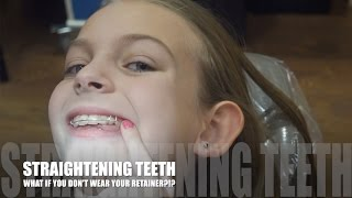 STRAIGHTENING TEETH!!! WHAT IF YOU DON'T WEAR YOUR RETAINER?!?(M&M had braces straightening her teeth. She got them off a couple months ago and was switched to a retainer. At her checkup, the orthodontist noticed she is ..., 2017-01-17T18:30:00.000Z)