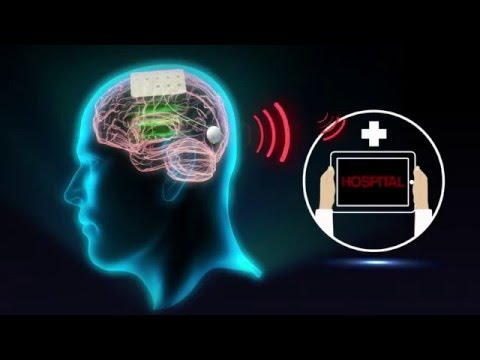 Graphene-based sensors for biomedicine and brain-machine interfaces (MWC 2016)