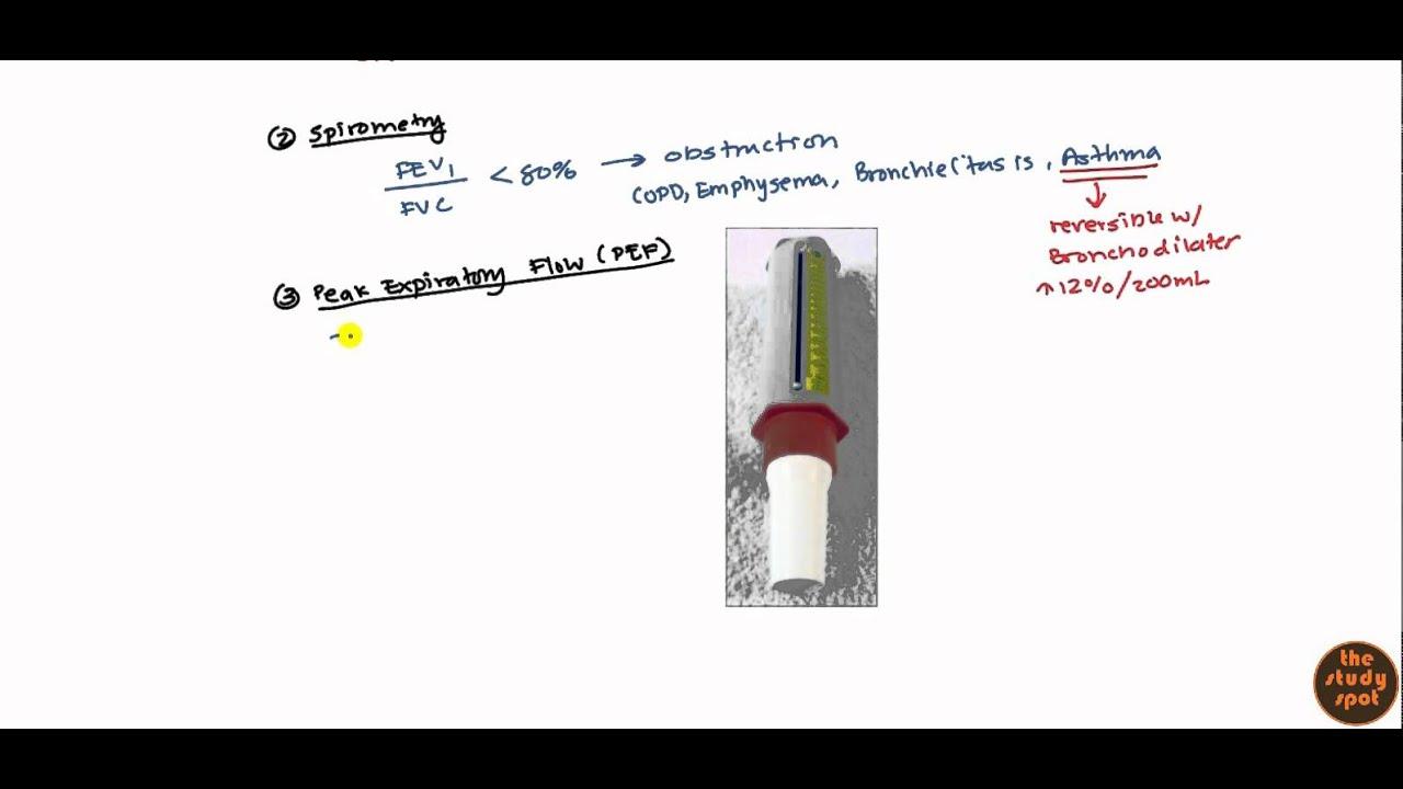 Asthma for USMLE Step 2 - YouTube