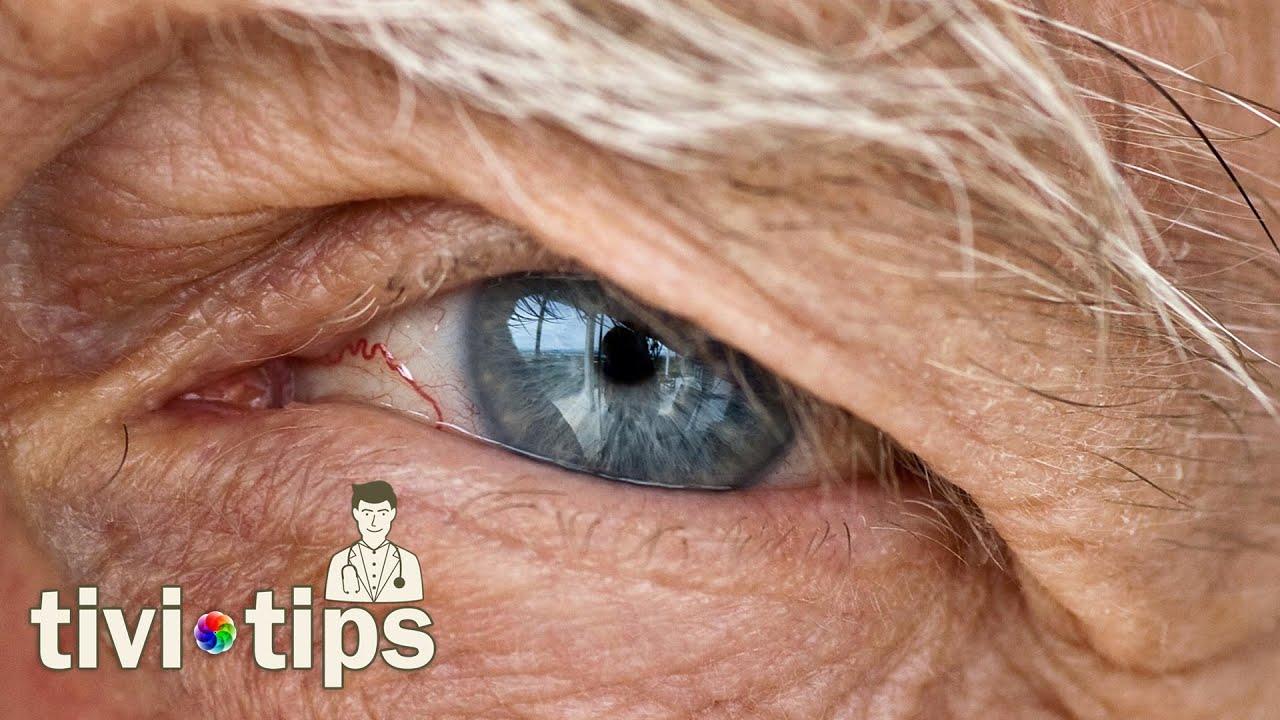 Göz Yanmasına Ne iyi Gelir Bitkisel Çözüm