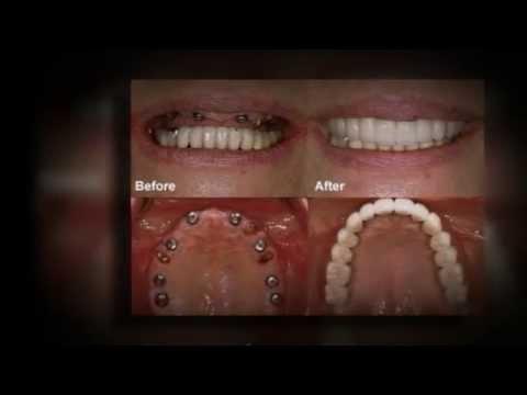 Permanent Dentures Cost In India >> [Cost Of Mini Implants] | Doovi
