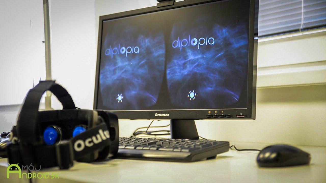 e66e4d5ea VIDEO | Očná klinika v Martine využíva na liečbu Oculus Rift
